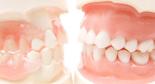 歯並び・噛み合わせ